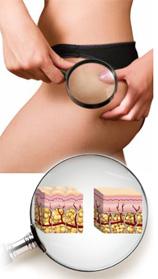 Complexe anti-cellulite